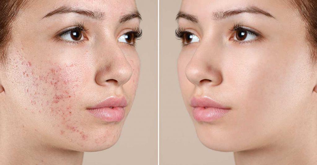 5 consejos para tratar el acné juvenil