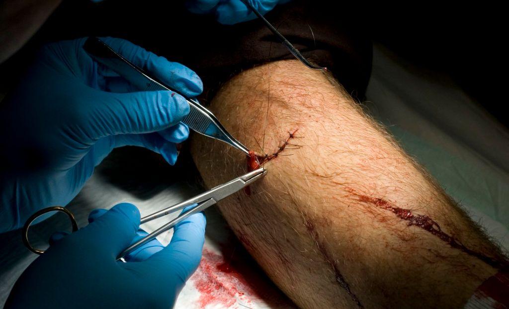 ¿Cómo cuidar las cicatrices después de una cirugía?