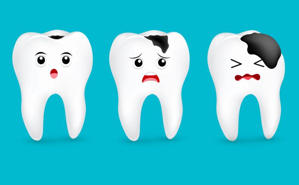 ¿Conoce qué es la caries dental, sus fases y cómo tratarla?