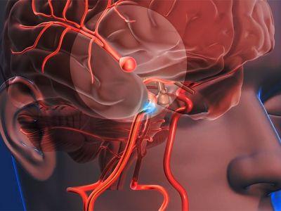 ¿Sabes que es un Accidente Cerebrovascular, los tipos de (ACV) y cómo identificar los primeros síntomas?