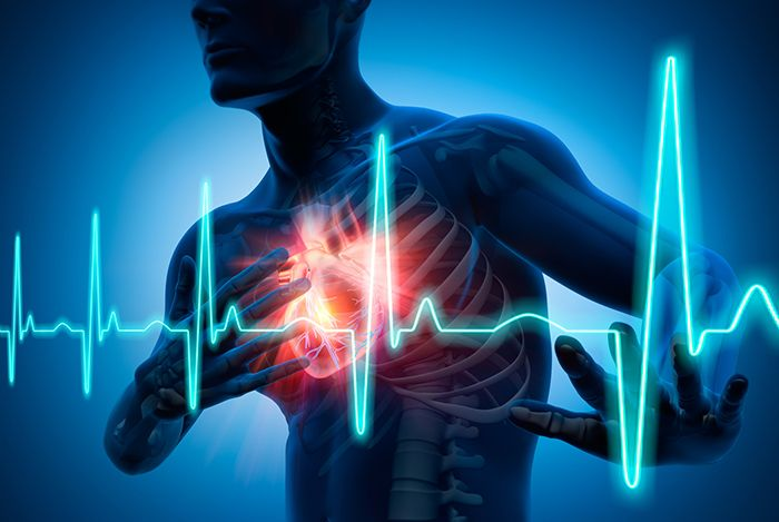 ¿Sabes que es la Insuficiencia Cardíaca, cómo se presenta y cuales son los tipos? ¡Conoce hoy mismo todo!