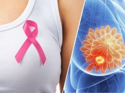 ¡Las mujeres que lo sufren, luchan contra esta enfermedad!  Conoce un poco sobre los últimos estudios realizados en el cáncer de mamá